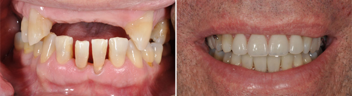 Before and After | Partial Dentures and Crowns