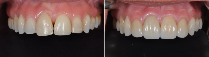 Before and After | All Ceramic Crowns and Veneers