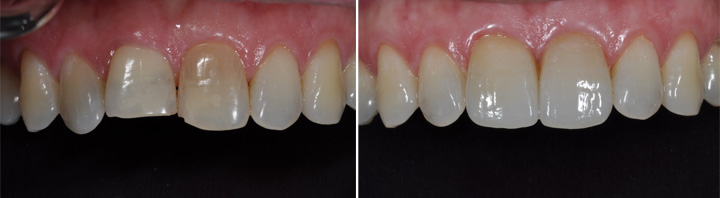 Before and After | All Ceramic Crowns