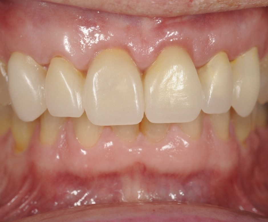 Step 3 A glance into your smile - A Full Mouth Reconstruction Procedure
