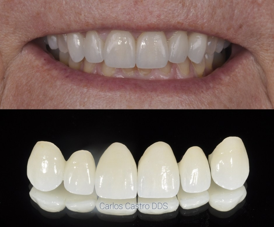 Step 4 The final new teeth - Full Mouth Reconstruction at Georgia Prosthodontics