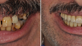 Before and After | Full Mouth Reconstruction