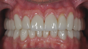 After Full Mouth Reconstruction Georgia Prosthodontics Smile Specialists