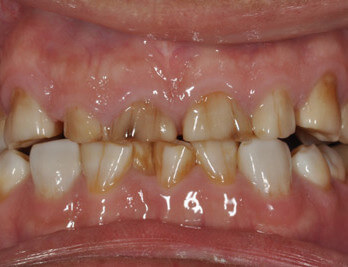 Full Mouth Reconstruction Georgia Prosthodontics Smile Specialists