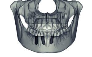 Dental Implants | Dental Implant Center Atlanta