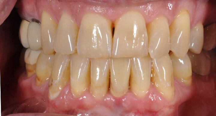 Single Implant | Georgia Prosthodontics Smile Specialists