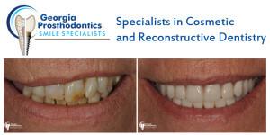 Dental Services | Georgia Prosthodontics Smile Specialists