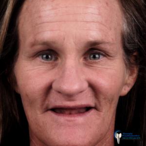 Amazing Story Before Implant Dentures Georgia Prosthodontics