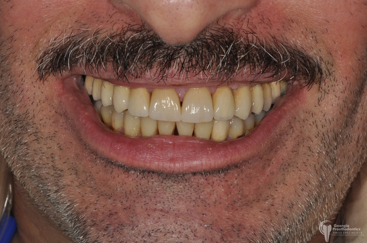 Full mouth Reconstruction Georgia Prosthodontics