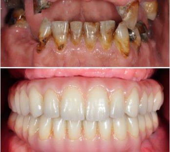Full Mouth Reconstruction in Georgia Prosthodontics Atlanta