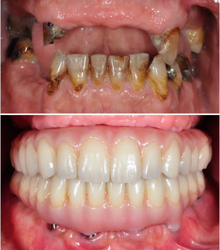 Full Mouth Reconstruction in Georgia Prosthodontics Atlanta