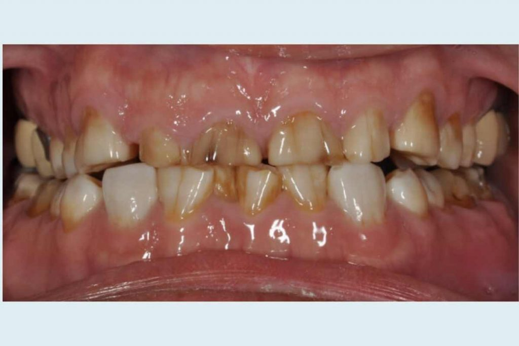 Full Mouth Reconstruction By Dr. Carlos Castro DDS at Georgia