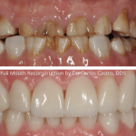 Full Mouth Reconstruction By Dr. Carlos Castro DDS at Georgia Prosthodontics Atlanta