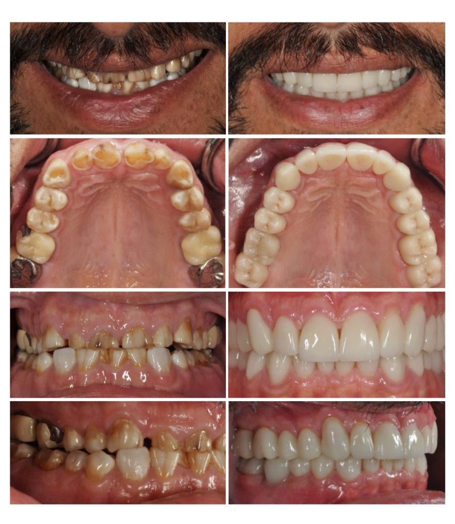 Full Mouth Reconstruction by Carlos Castro, DDS, FACP, Board Certified Prosthodontist