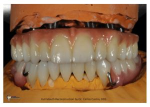 Full Mouth Reconstruction By Dr. Carlos Castro DDS