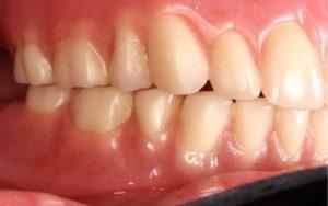 Denture Case After Dr Castro DDS