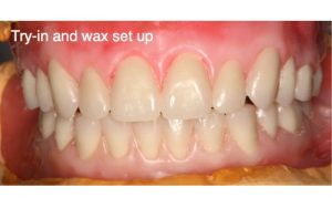 Denture Case Try in and wax set up