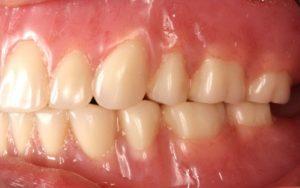 Dentures Case after Dr Carlos Castro DDS