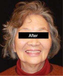 Dentures Patient After
