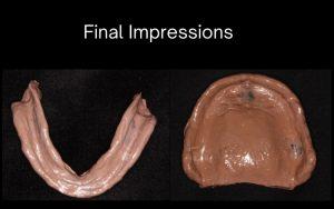 Final impressions Dentures