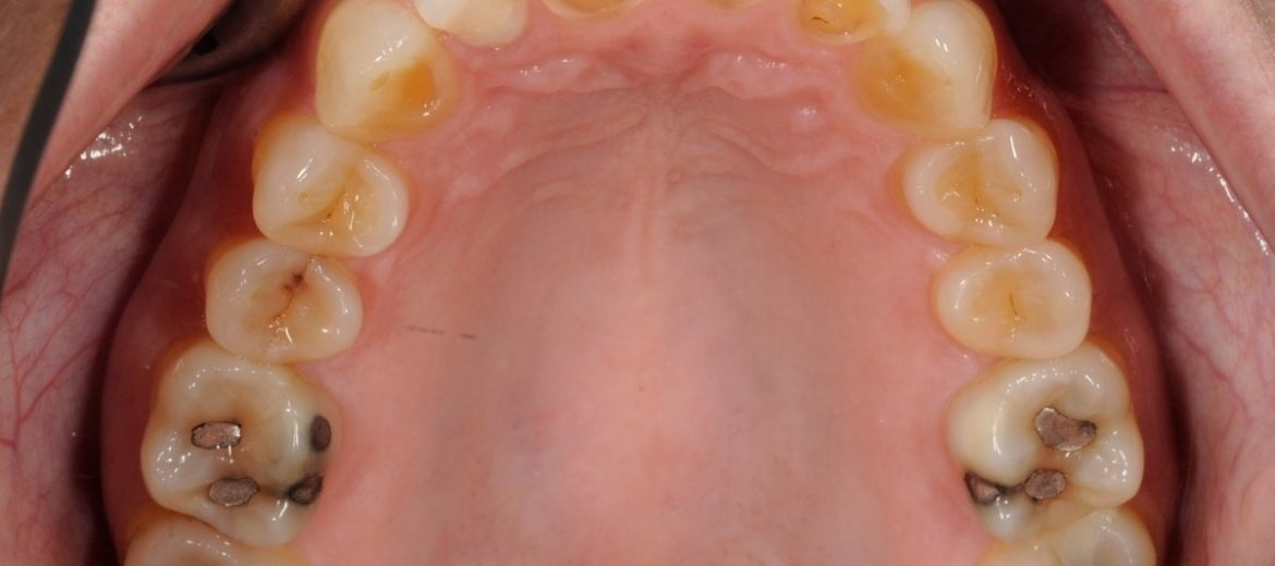 Before Patient with Bruxism and Clenching