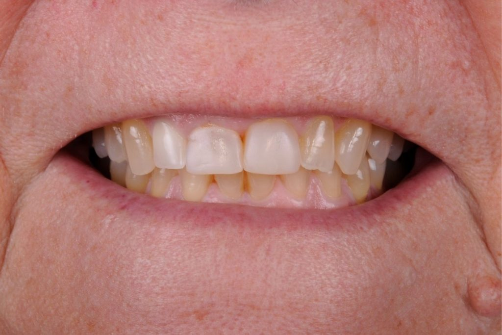 Patient´s case with Bruxism and Clenching (Before)