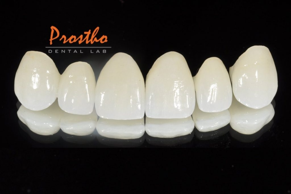 Pressed lithium disilicate crowns (Emax) fabricated by Prostho Dental lab