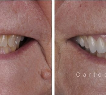 Rehabilitation of a Patient with Bruxism and Clenching at Georgia Prosthodontics