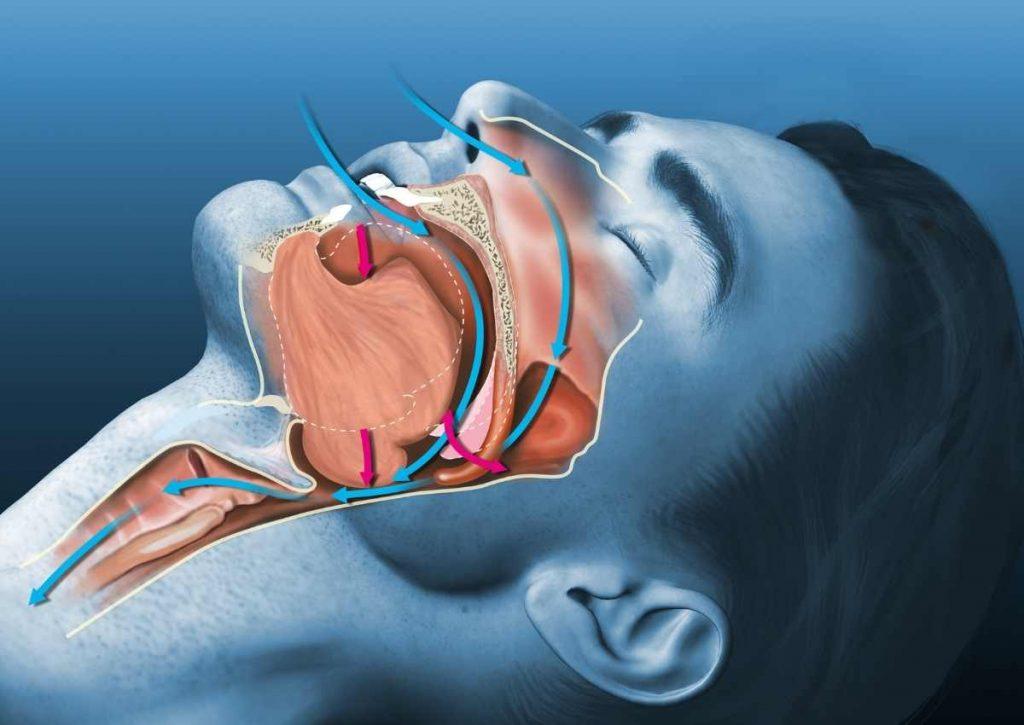Obstructive sleep apnea (OSA) treat by Georgia Prosthodontics Atlanta