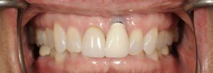 Patient with failing restorations treated in Georgia Prosthodontics
