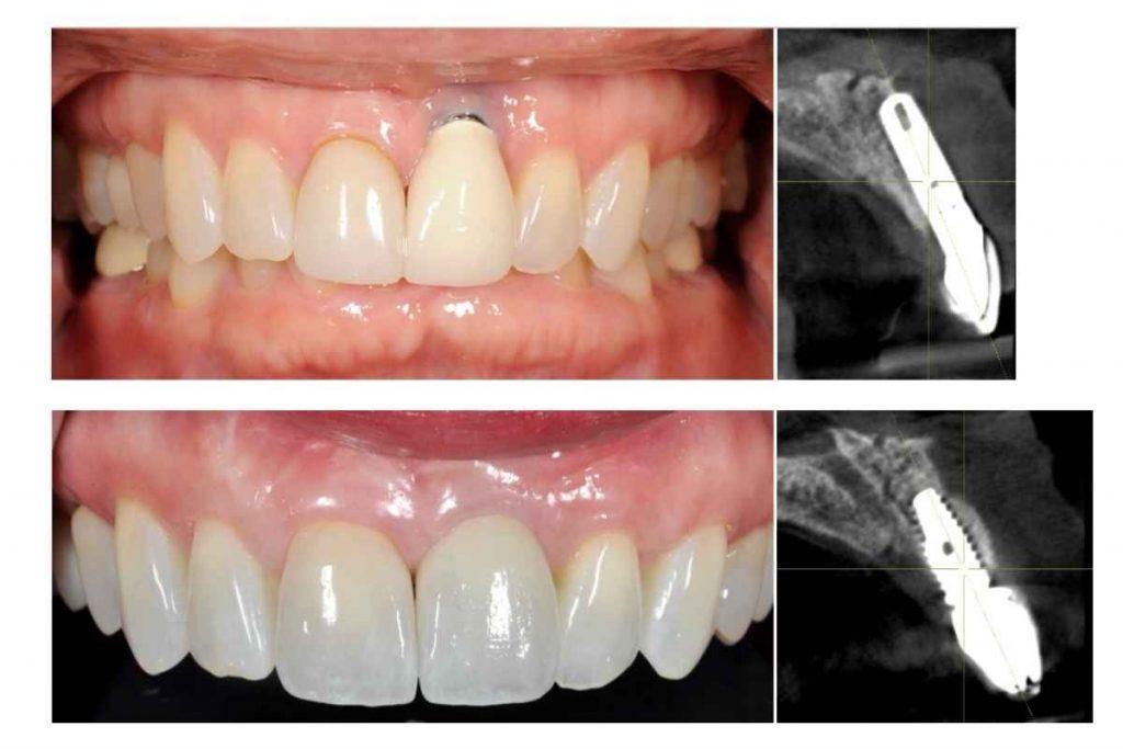 Single Anterior Implant Challenge