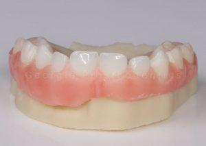 Dentures in Young People - Ectodermal Dysplasia Teeth