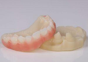 Ectoderma Dysplasia Dentures for Kids