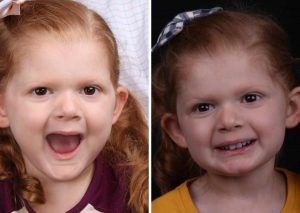 Ectoderma Dysplasia young people with Dentures