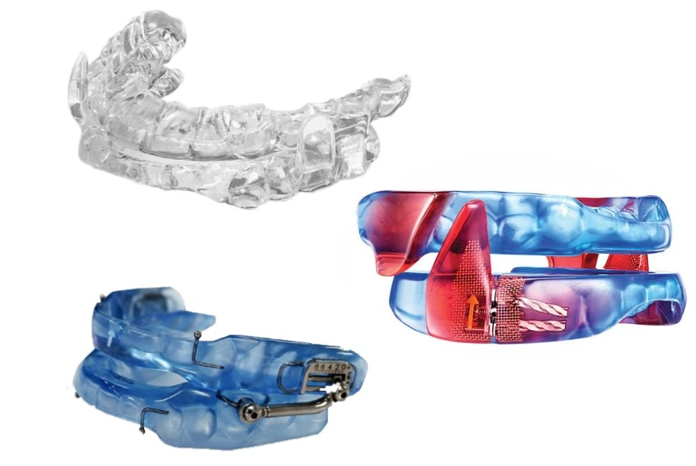 Oral Devices
