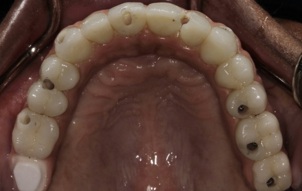 Fig. 8. Access to all abutment screws completed